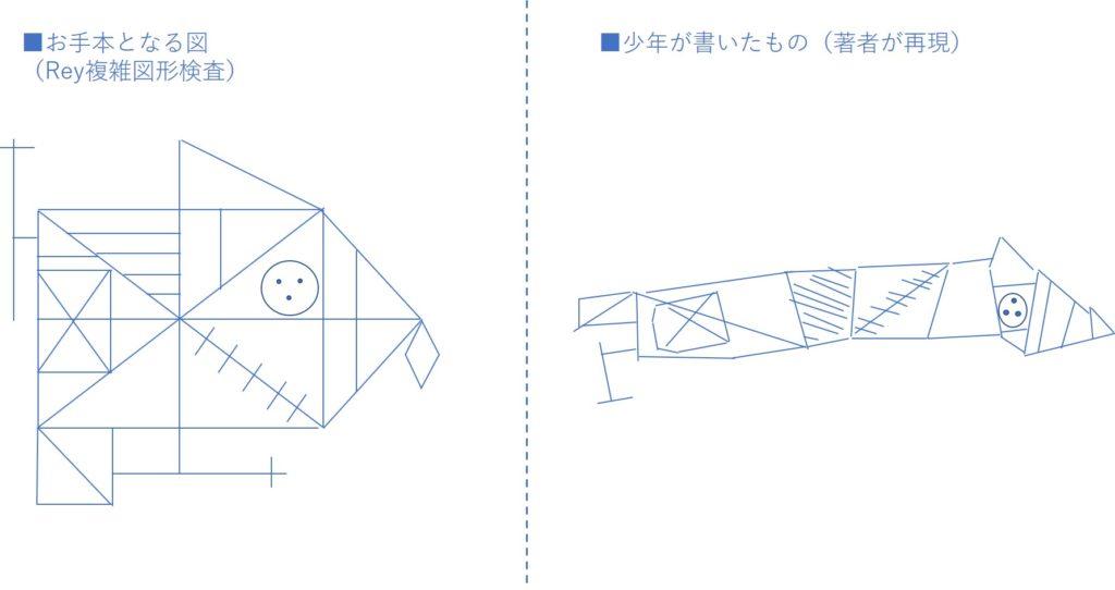 Rey複雑図形検査の図